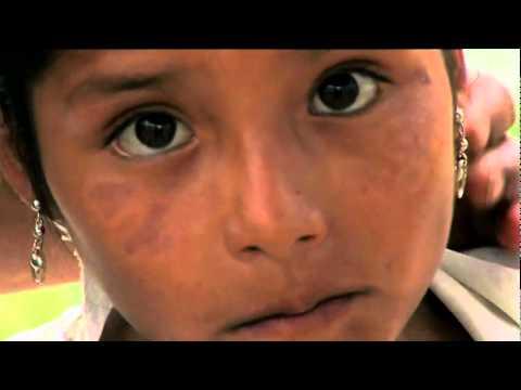 Embedded thumbnail for Choropampa, El Precio del Oro - Actualización, 2010